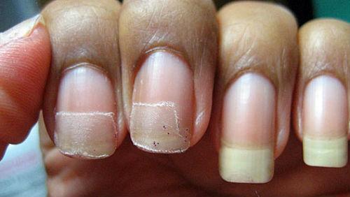 К чему сниться срезать ногти